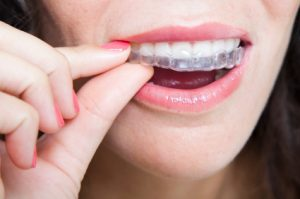 Dental 101: Things to Know Before Getting Invisalign